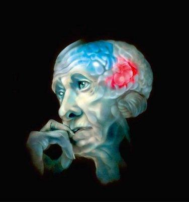Болезни мозга можно предупредить- Фото 1